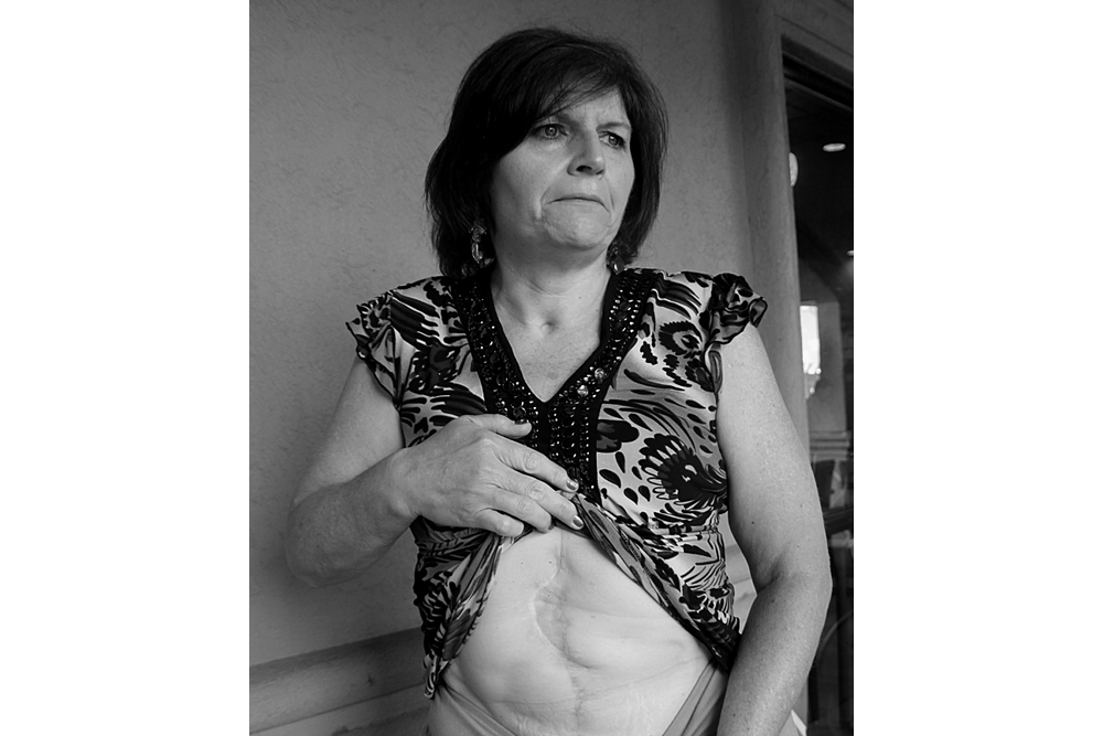 Laura White shows the scars left from a shotgun blast to her abdomen by her abusive ex-husband that nearly killed her